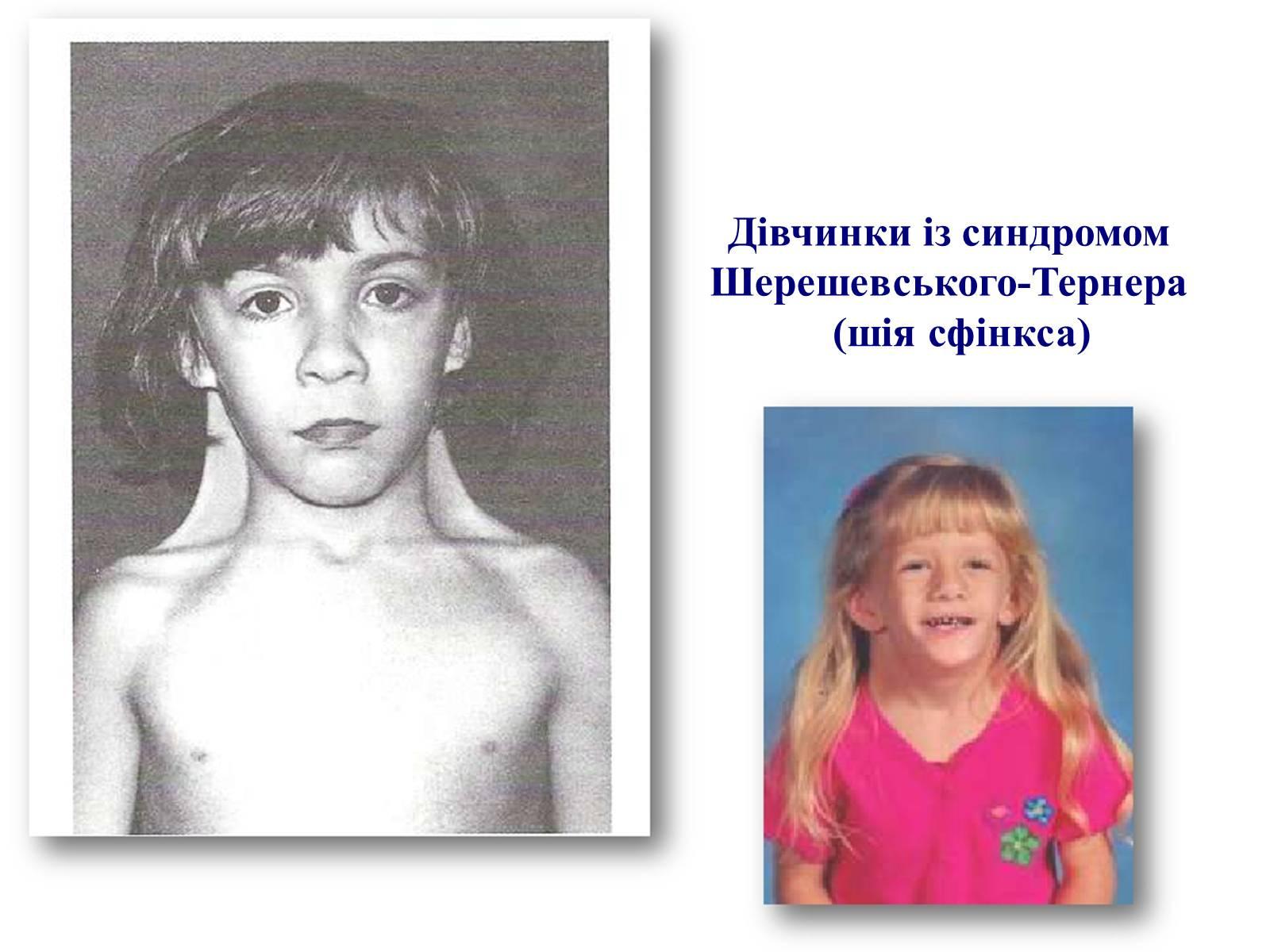 Синдром шерешевского тернера фото детей