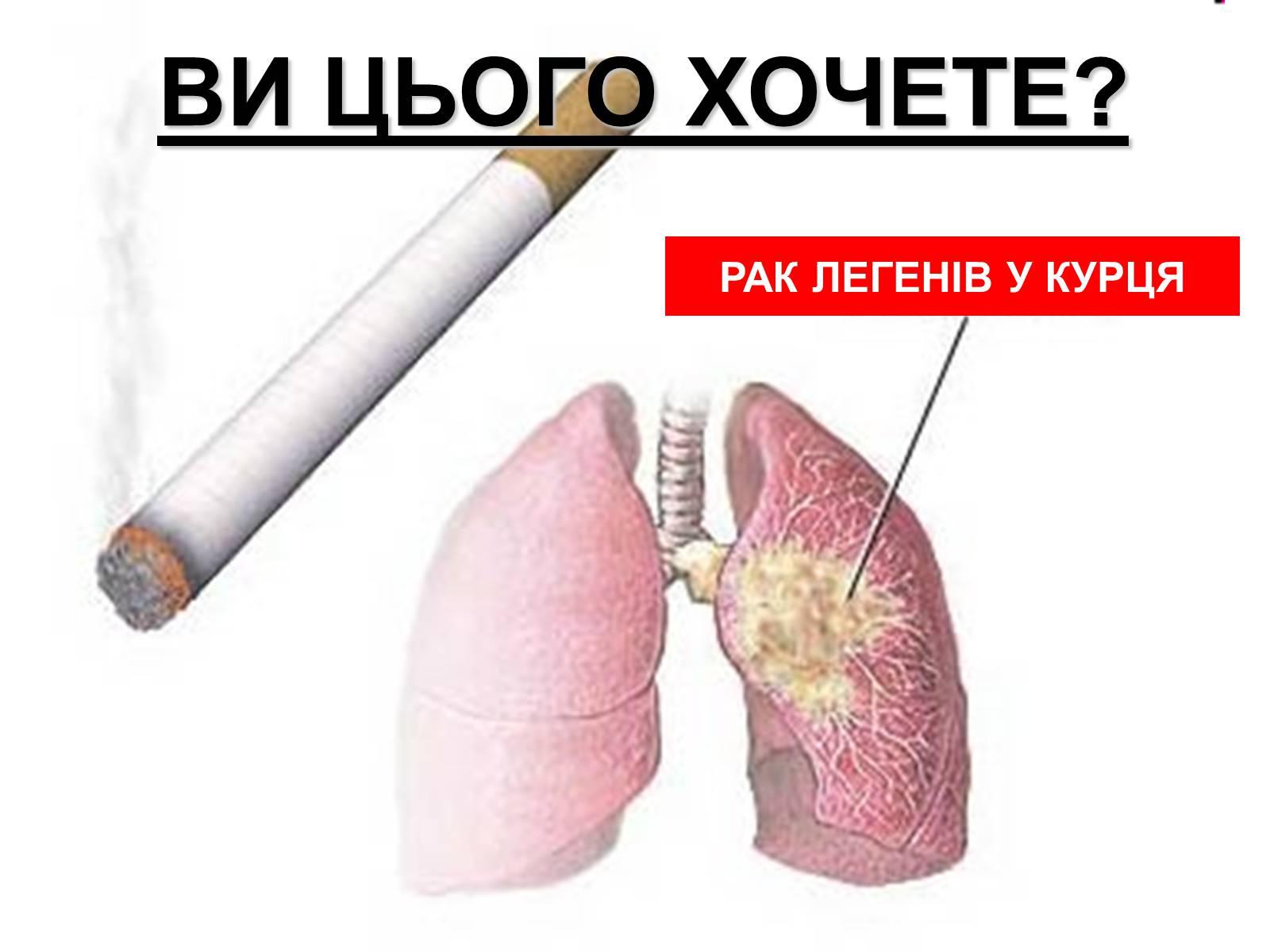 pamanahong papel tubercolosis