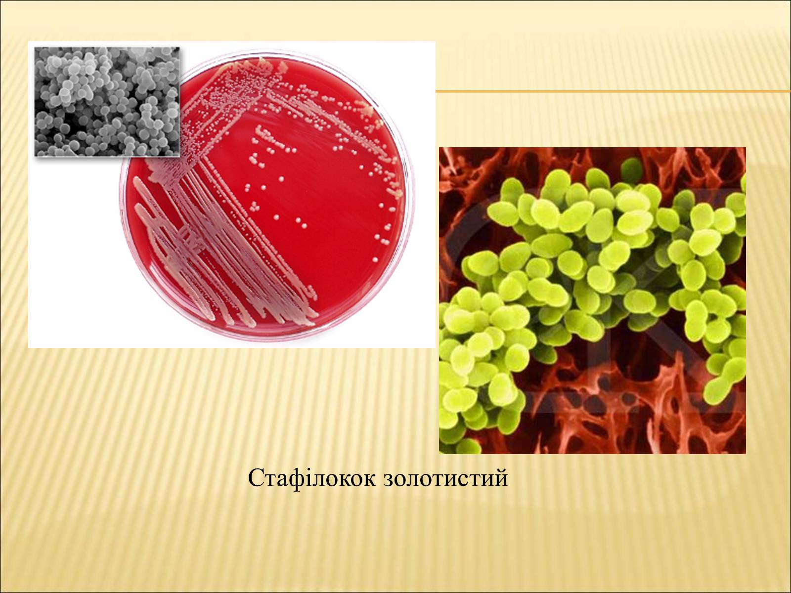 Роль бактерий в хозяйственной деятельности человека картинки 3