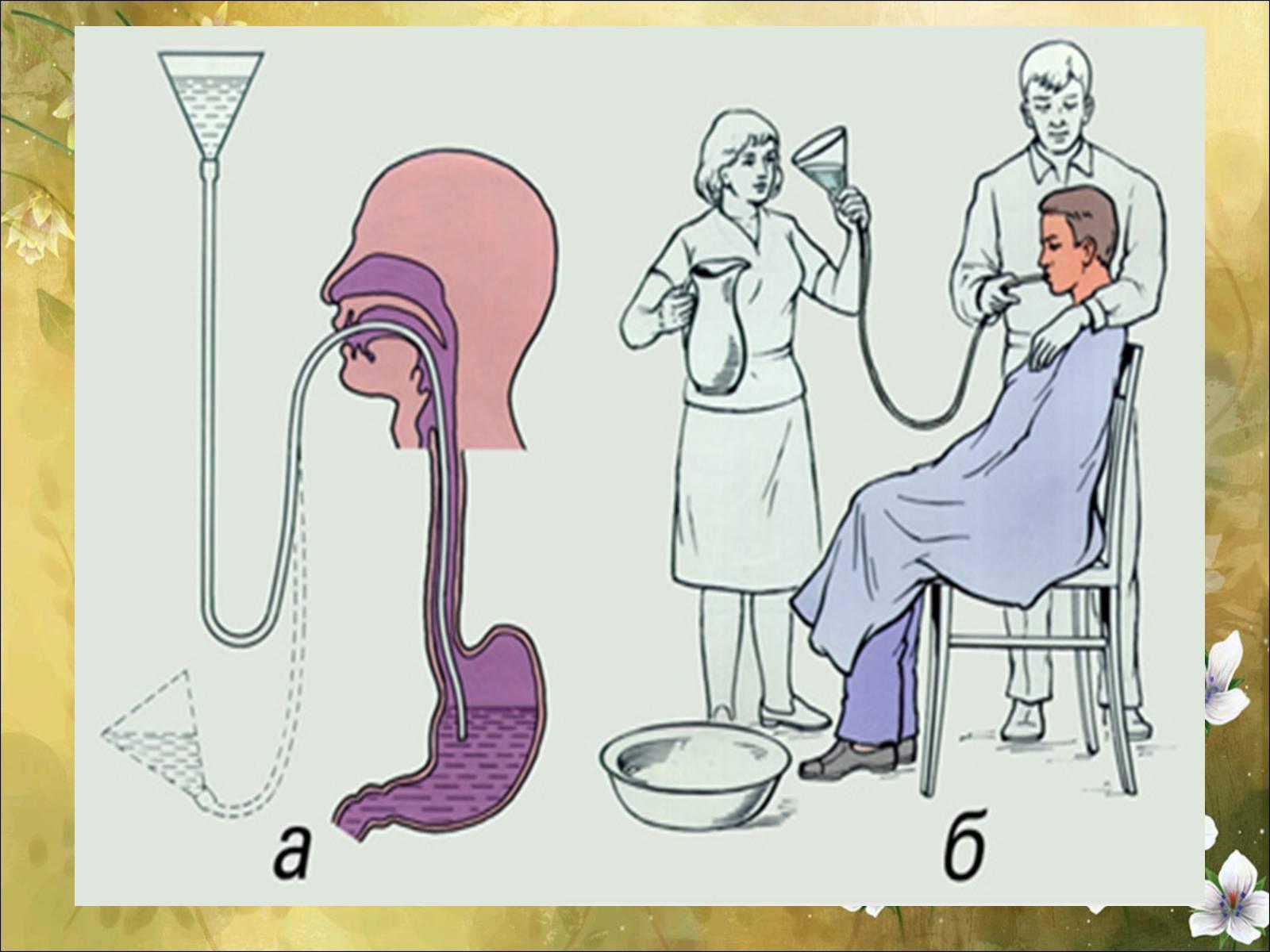 Промывание желудка 94