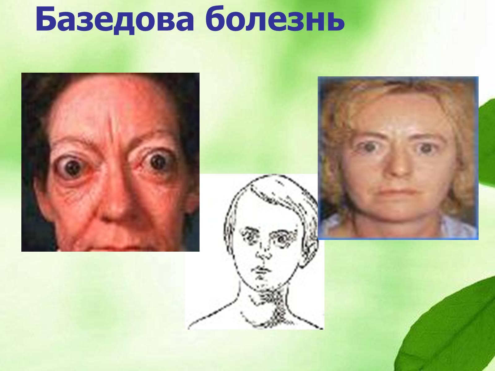 Диффузно-узловой зоб - proximedru