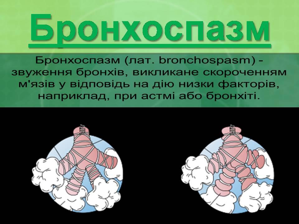 Признаком Бронхоспазма