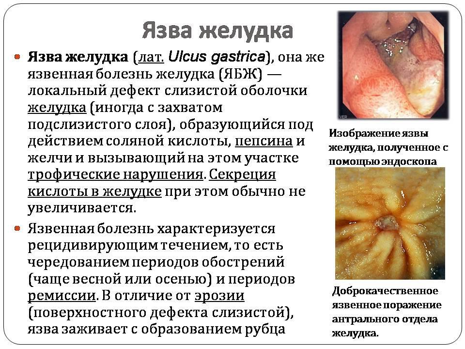 Презентація на тему Болезни пищеварительной системы - презентації з біології GDZ4YOU