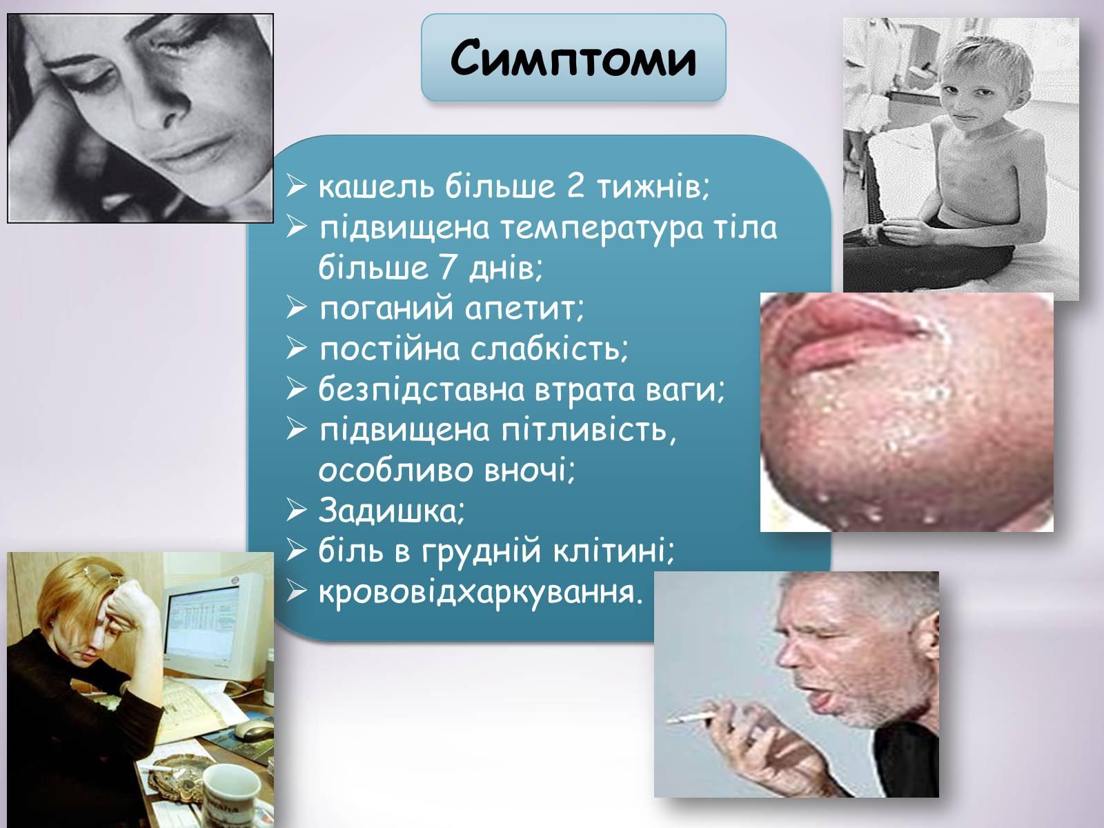 Симптом кашель только днем